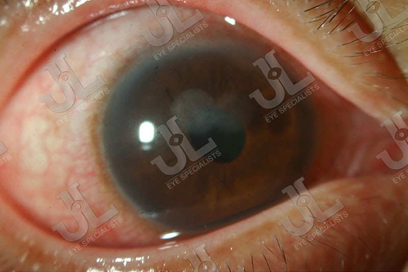 Dr Jimmy Lim JL Eye Specialists Cornea Bacterial Infection Light