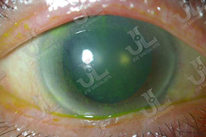 Dr Jimmy Lim JL Eye Specialists Cornea Poor Ocular Surfaces Green