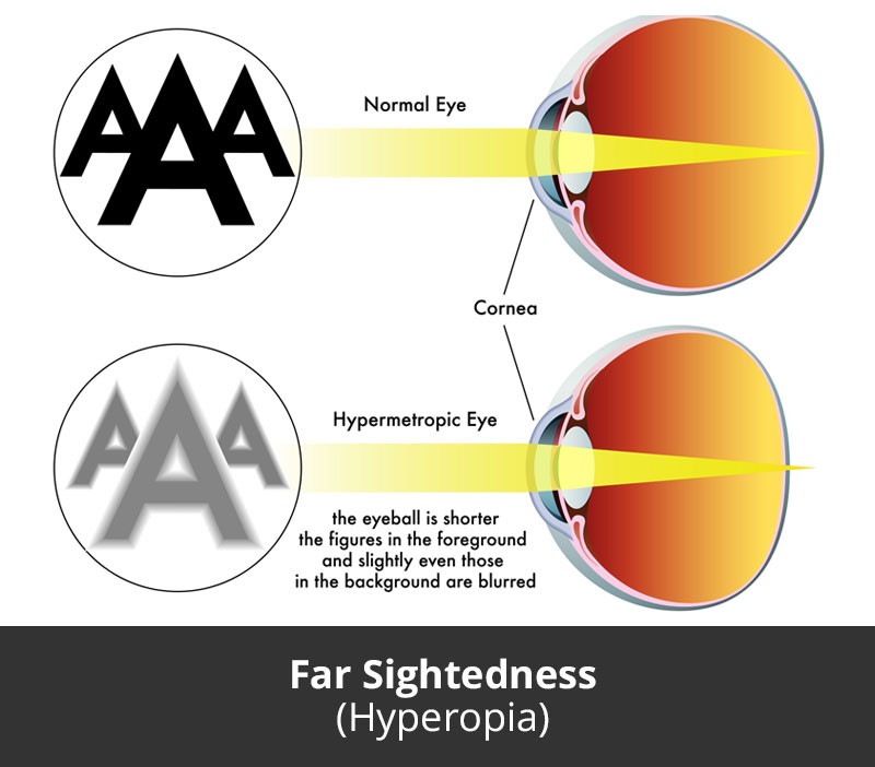 jl-eye-specialists-clinic-singapore-far-sightedness-hyperopia