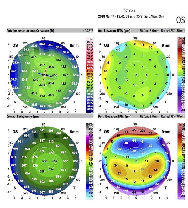 Dr Jimmy Lim JL Eye Specialists Cornea Healthy Cornea Topographical Galilei G6 Scan Results KPI
