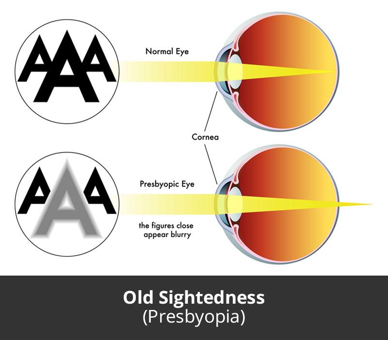 jl-eye-specialists-clinic-singapore-old-sightedness-presbyopia