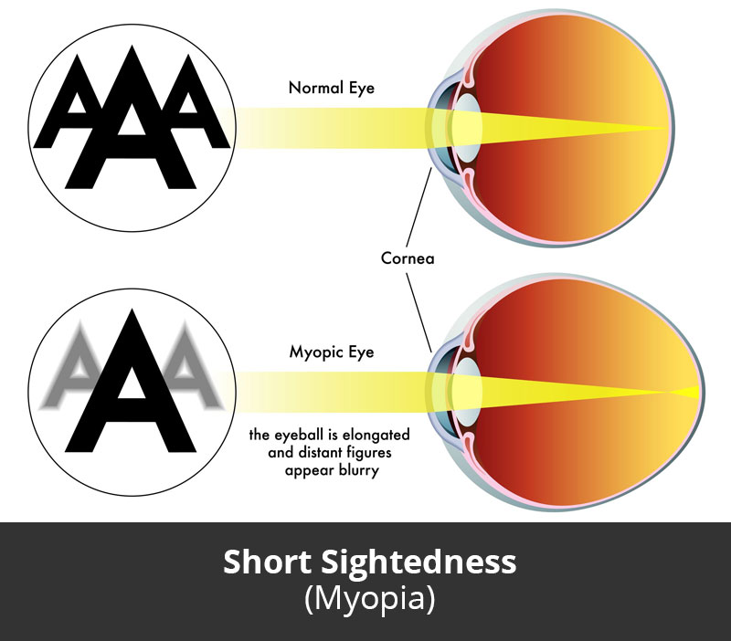 jl-eye-specialists-clinic-singapore-short-sightedness-myopia